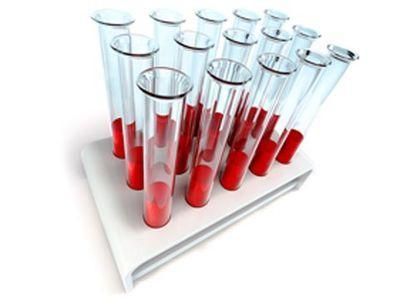 Можно ли определить наличие паразитов в организме по составу крови?